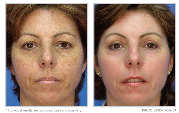 dermatologist treatment for dark spots on face